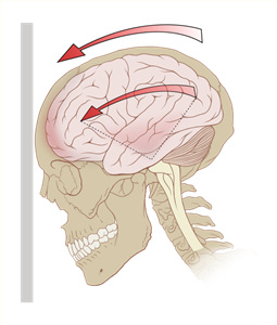 538px-Concussion_mechanics_svg.jpg
